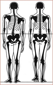 skeletons diagram