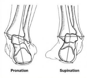 Plantar Fasciitis Treatment Brighton